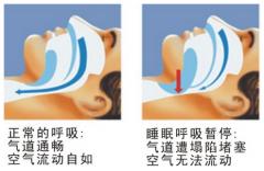 打呼噜是什么原因