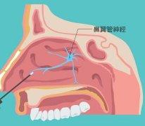 过敏性鼻炎翼管神经阻断术