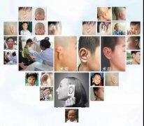 章庆国教授来我院开展外耳再造手术,为患儿塑造完美双耳!
