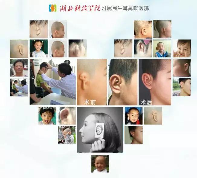 拯救听力――骨桥植入术,让患者重回有声世界!
