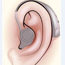 科学验配助听器 爱上倾听
