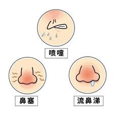 如何区分鼻炎和鼻窦炎?记住这几点就够了(文末有福利)