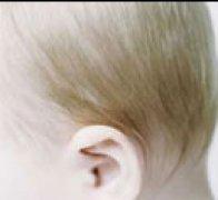 先天性小耳畸形矫正是怎样的