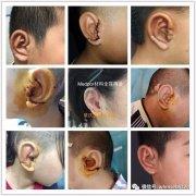 黄金周期间章庆国教授来院成功开展50余例耳畸形手术