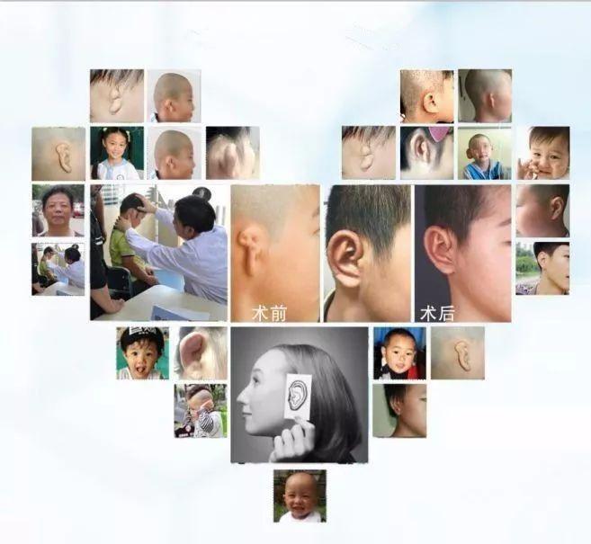 元旦期间章庆国教授来院成功开展数例耳畸形手术